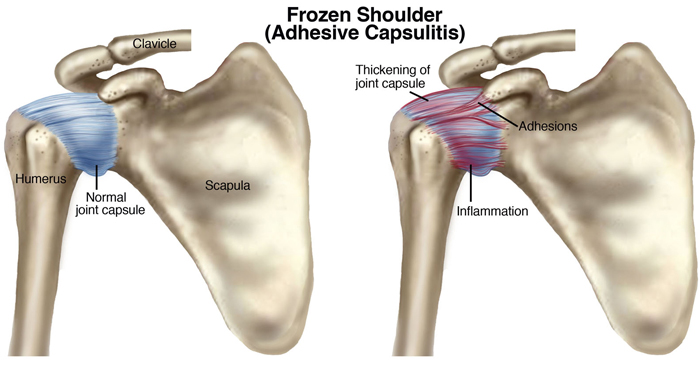 Frozen Shoulder and Treatment - Metairie Louisiana - Chiropractic Remedies